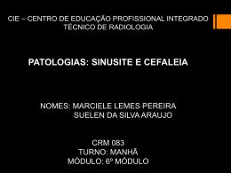 Marciele / Suelen - Sinusite e Cefaleia