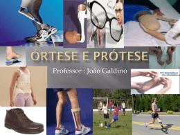Órtese e Prótese - Universidade Castelo Branco