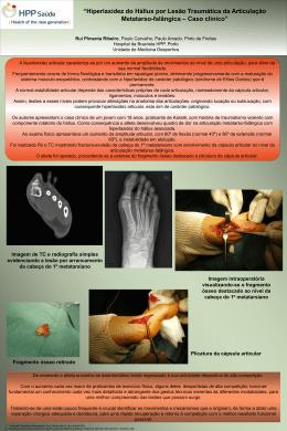 Hiperlaxidez do Hállux por Lesão Traumática da Articulação