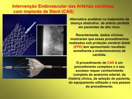 17 - Intervenção Endovascular das Artérias