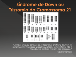 Síndrome de Down ou trissomia do cromossoma 21