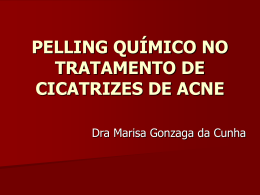 PELLING QUÍMICO EM CICATRIZES DE ACNE