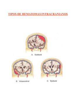 Tipos de hematomas intracranianos