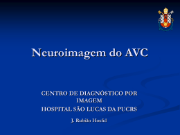 Neuroimagem do AVC