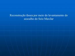 Cirurgia de Seio Maxilar