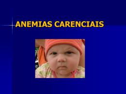 Anemias e Carências Falciformes