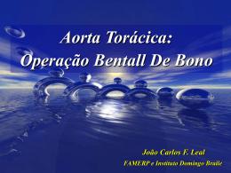Aorta Torácica: Operação Bentall De Bono