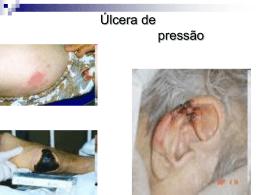 úlceras de pressão