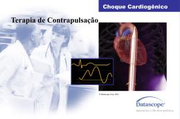 Uso do Balão Aórtico no Choque Cardiogênico