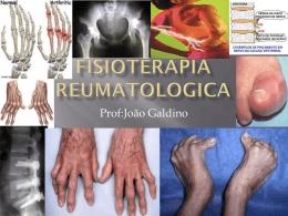 Fisioterapia Reumatologica - Universidade Castelo Branco