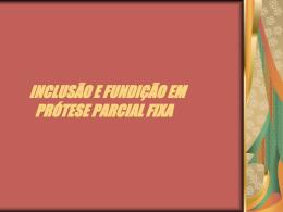INCLUSÃO E FUNDIÇÃO EM PRÓTESE PARCIAL FIXA