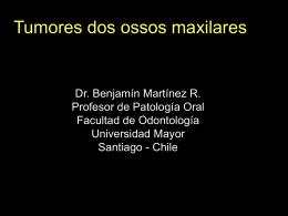 Tumores de los huesos maxilares