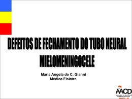 Defeitos de Fechamento do Tubo Neural Mielomeningocele