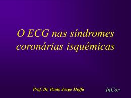 Importância do ECG na Estratificação de Risco no Infarto Agudo do