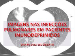 Imagens nas infecções pulmonares em pacientes imunodepRimidos