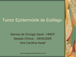 Tumor Epidermóide de Esôfago