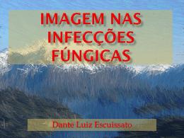 IMAGEM NAS Infecções fúngicas em pacientes imunodeprimidos