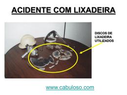 ACIDENTE COM LIXADEIRA
