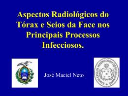 Aspectos Radiológicos do Tórax e Seios da Face nos