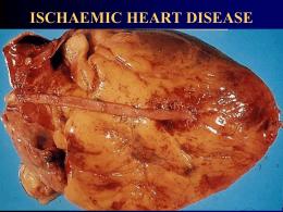 Doença Cardíaca Isquêmica