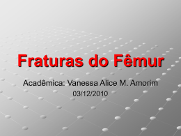 Fraturas do Fêmur