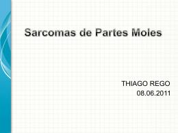 radioterapia sarcomas