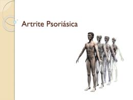 Artrite Psoriásica - Universidade Castelo Branco