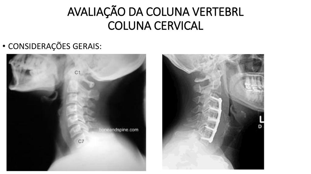 AVALIAÇÃO DA COLUNA VERTEBRL COLUNA CERVICAL