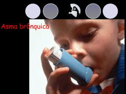 Bronquite crônica. Bronquiectasia. Asma brônquica