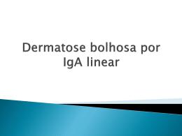 Dermatose bolhosa por IgA linear