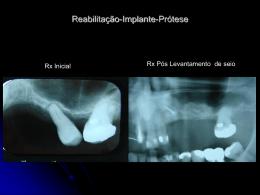 Unitárias-Dente-Implante - APCD – Regional Piracicaba