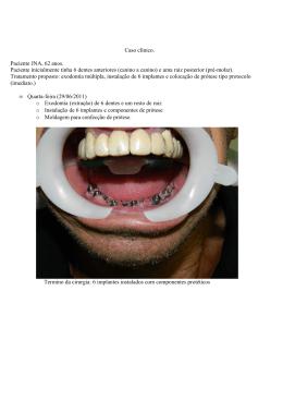 Caso Clínico: Implante JNA