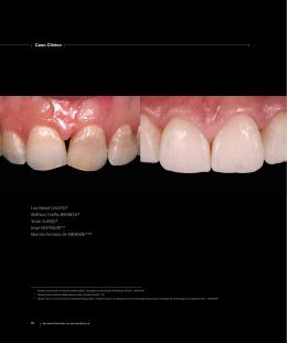 Clareamento Dental De Consultorio Em Dentes Vitais Com