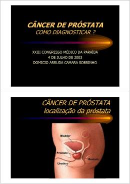 Câncer de Próstata - Portal de Ginecologia