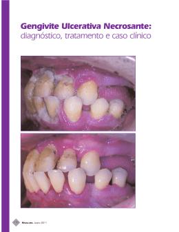 Gengivite Ulcerativa Necrosante