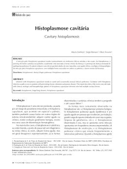 Histoplasmose cavitária
