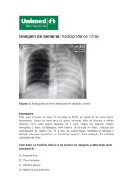 Imagem da Semana: Radiografia de Tórax