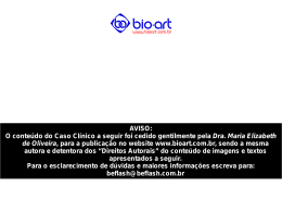 técnica de ortodontia Be Flash - Bio-Art