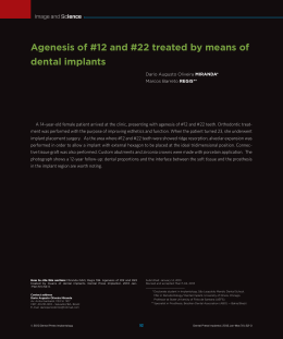Agenesis of #12 and #22 treated by means of dental implants