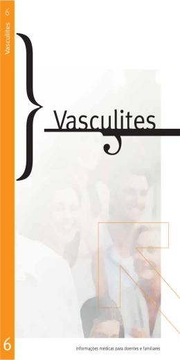 Vasculites  - Sociedade Portuguesa de Medicina Interna
