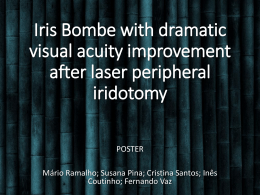 Iris Bombe with dramatic visual acuity improvement after laser